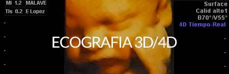 Ecografía 3D / 4D