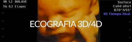 EcografIa 3D / 4D