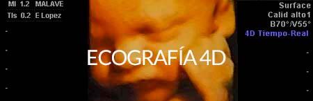 Ecografía 4D